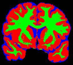 klinikum großhadern radiologie